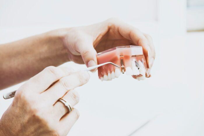 Dental Implants at Barnet Smiles